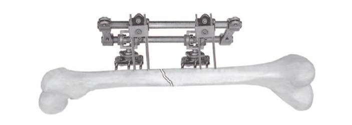 Апарат зовнішньої фіксації